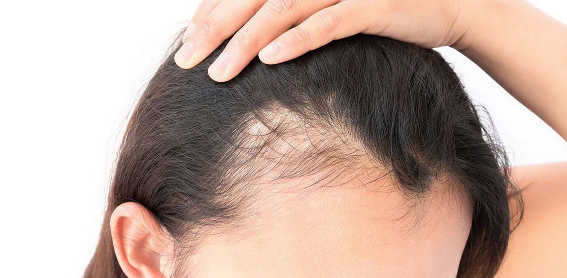 7 Hair Loss Treatment for Women