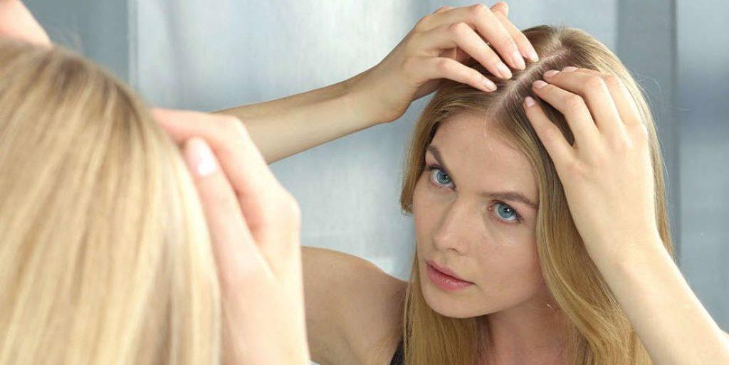 7 Hair Loss Treatment for Women - Sandra Downie