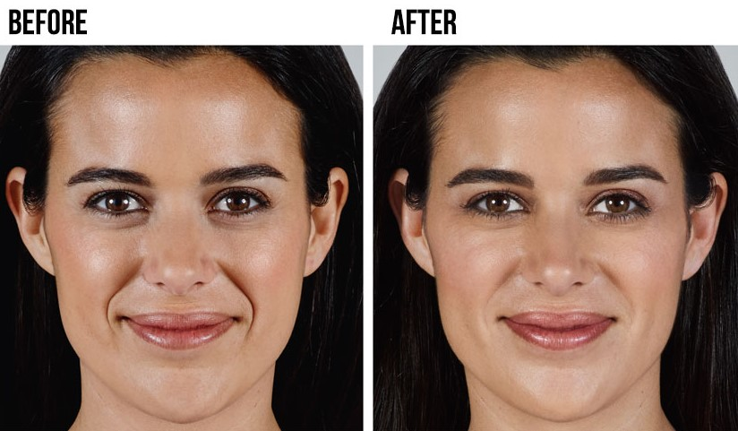 What to Know About Facial Fillers