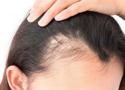 7 Hair Loss Treatment for Women