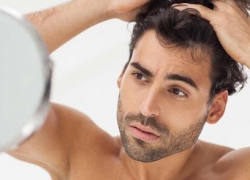 10 Best Solutions for Bodybuilders to Reduce Hair Loss